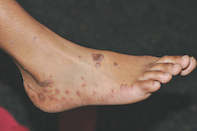 Fig. Foot lesions.