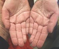 Fig 1. Wrinkled palms.